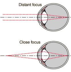 optiko stres3