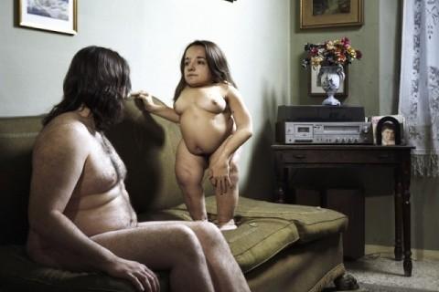 Άνθρωποι με αναπηρία που αποπνέουν ερωτισμό (εικόνες)