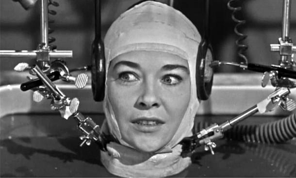 Προετοιμάζεται η πρώτη μεταμόσχευση ανθρώπινου κεφαλιού!